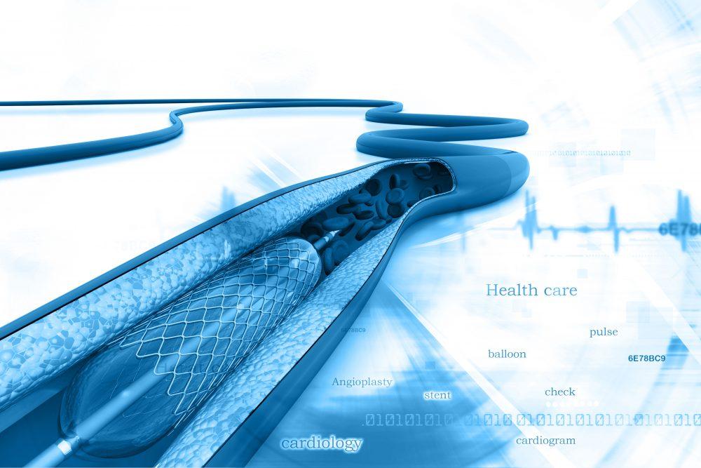 Procedures & Devices - Heart Research Australia